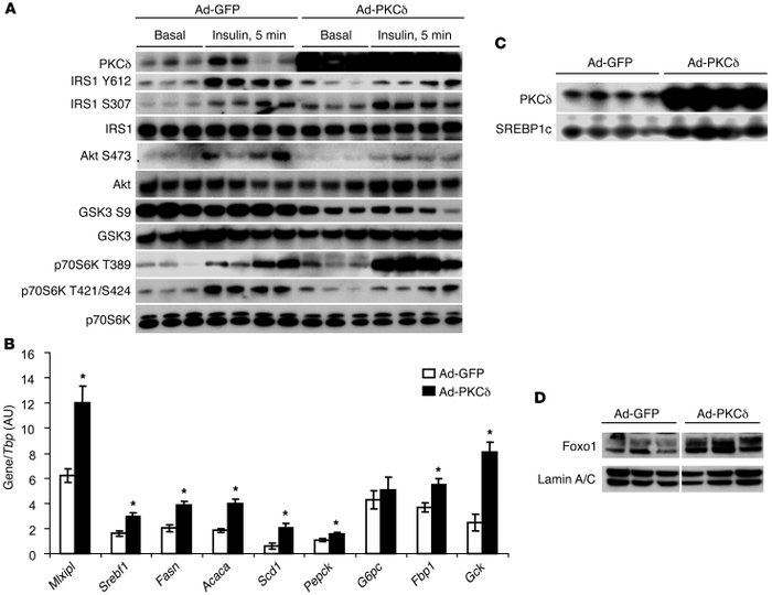 High hepatic PKCδ expression levels lead to hepatic insulin resistance. ...