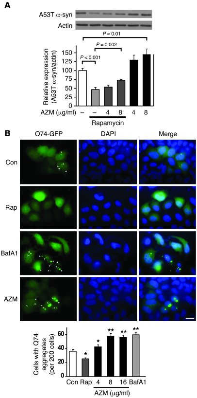 Azithromycin blocks autophagic clearance and autophagosome acidification...