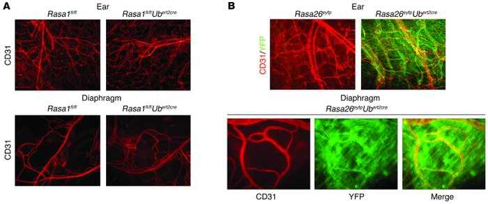 Absence of blood vessel abnormalities in induced RASA1-deficient mice. (...
