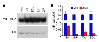 Expression of miR-133 in skeletal muscle. (A) Northern blot analysis of ...