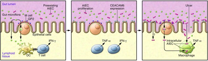Proposed role of AIEC in the pathogenesis of CD. Left: CD is initiated b...