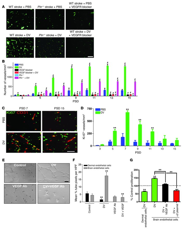 DV increases brain angiogenesis in a VEGF- and VEGFR-dependent fashion. ...