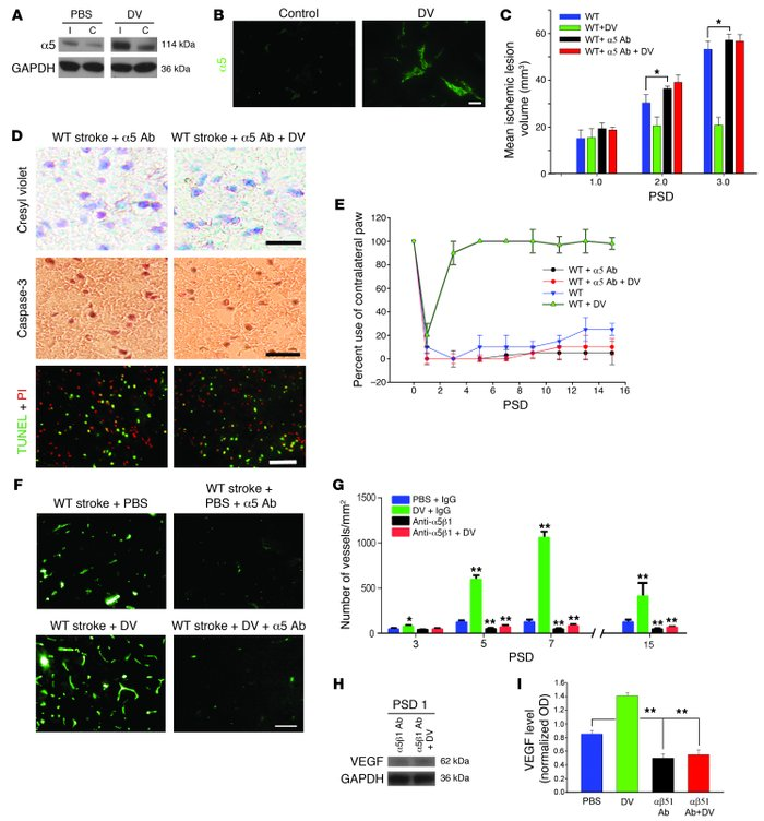DV effects are mediated via the α5β1 integrin in vivo. (A) Anti-α5β1 Wes...