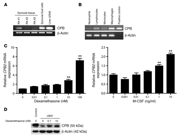 CPB expression in RA synovial tissue and inflammatory cells. (A) CPB2 mR...