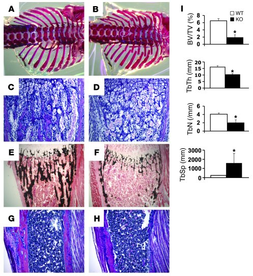Deletion of Gsα in the osteoblast lineage leads to severe osteoporosis. ...