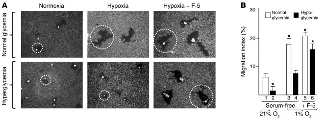 F-5 rescues cell migration under hyperglycemia. (A) Primary HDFs were cu...