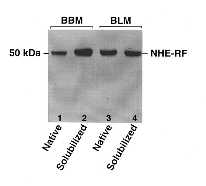 Western blot analysis of the native and solubilized BBMs and BLMs probed...