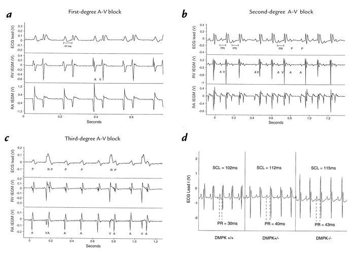 JCI - DMPK dosage alterations result in atrioventricular