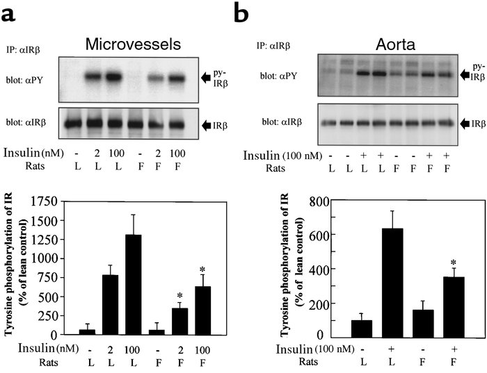 Tyrosine phosphorylation and protein levels of IRβ in the aorta and micr...