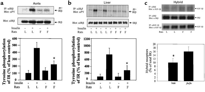 (a and b) Tyrosine phosphorylation and protein levels of IRβ in the aort...