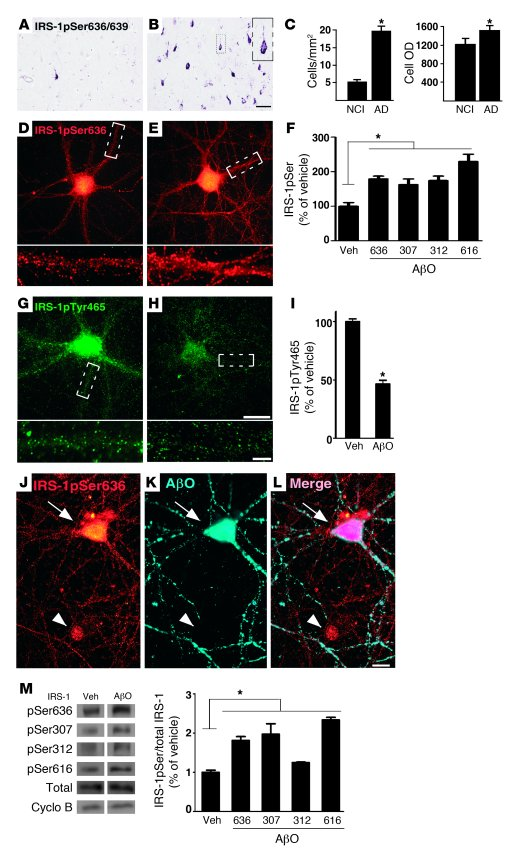 IRS-1pSer is increased in AD brain and in hippocampal neurons exposed to...