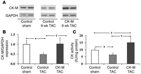 CK expression and activity in TAC hearts. Effect of TAC and CK-M overexp...