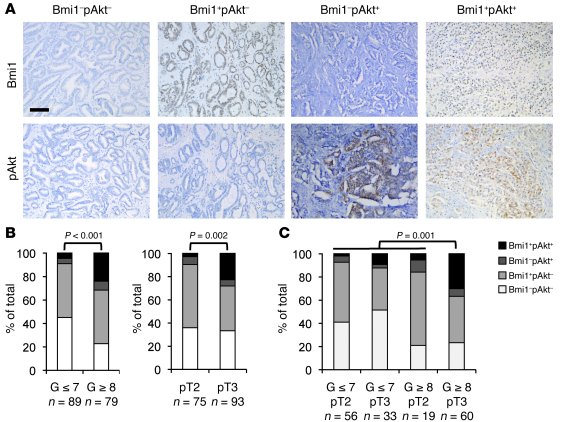 Bmi1 expression and activation of PI3K/Akt pathway correlate in high-gra...