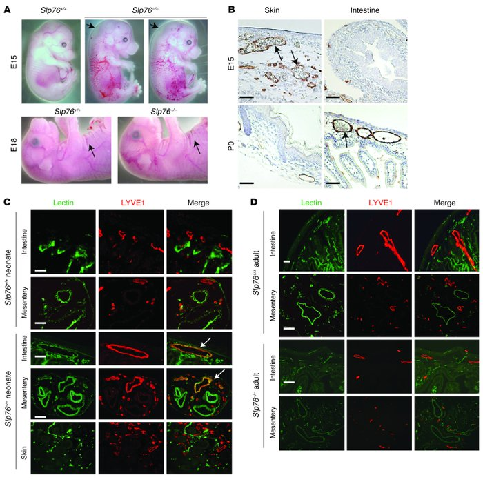 Late separation of the blood and lymphatic circulations in SLP76-deficie...