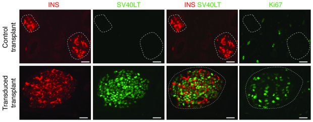 In vivo expansion of SV40LT-expressing cells in transplanted human fetal...