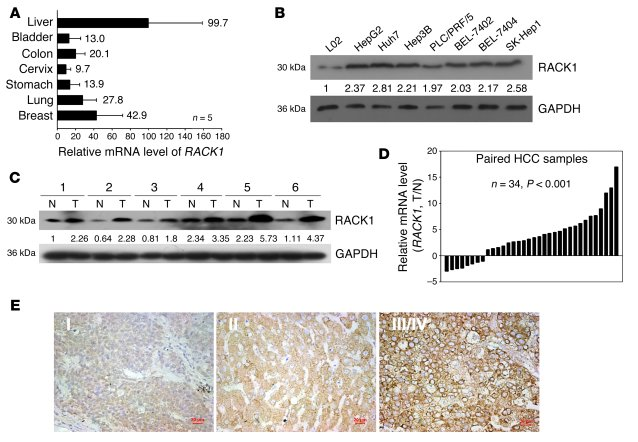 RACK1 is preferentially expressed in normal liver and frequently upregul...