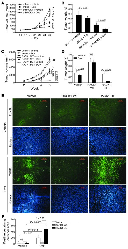 Ribosomal RACK1 modulates tumor growth of HCC in vivo. (A and B) RACK1 d...