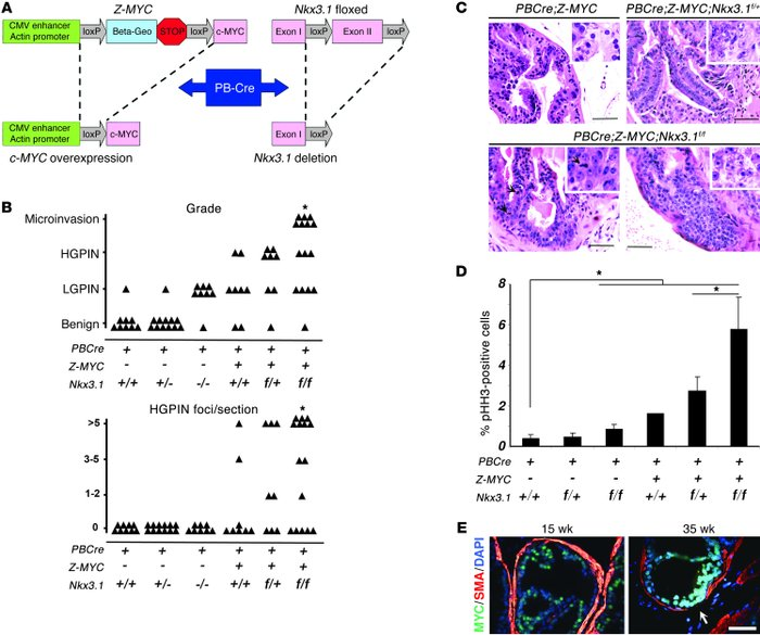 Loss of Nkx3.1 facilitates MYC-initiated prostate tumorigenesis in trans...