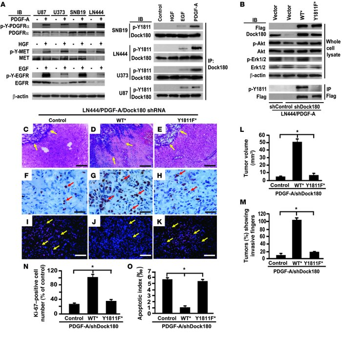 p-Y of Dock180Y1811 is required for PDGFRα-promoted glioma growth and in...