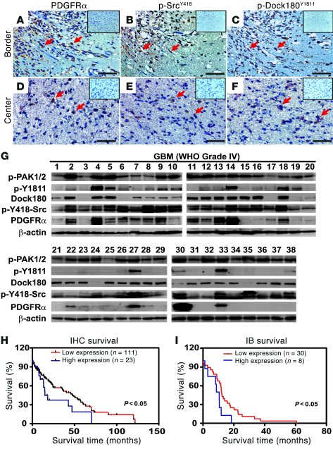 p-Dock180Y1811, p-SrcY418, and PDGFRα are coexpressed in primary human g...