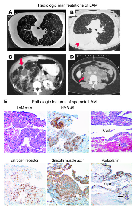 The clinical and pathologic features of LAM. (A–D) Representative radiol...