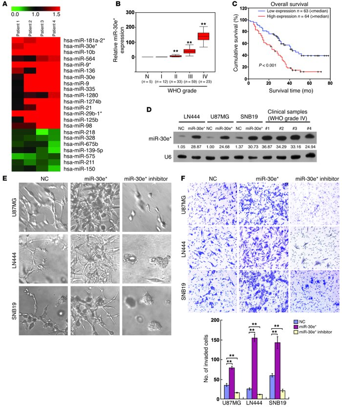 Upregulation of miR-30e* enhances invasiveness of glioma cells.     (A) ...
