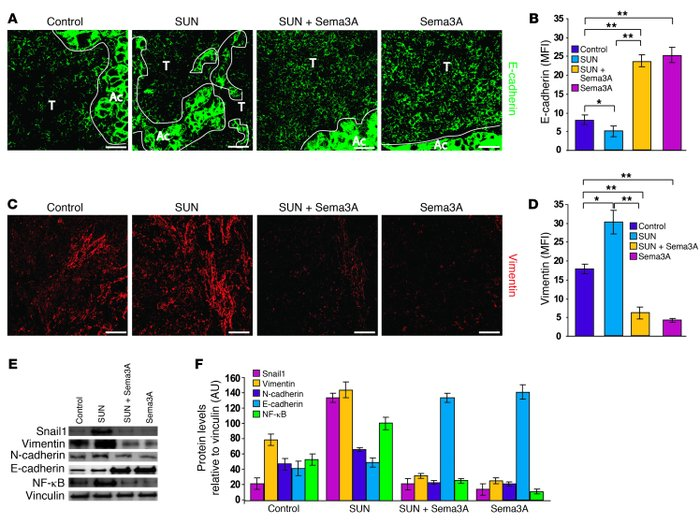 Sema3A reduces both basal and sunitinib-induced EMT and inhibits NF-κB e...