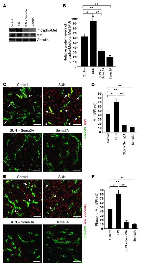 Sema3A inhibits basal and sunitinib-induced expression and activation of...
