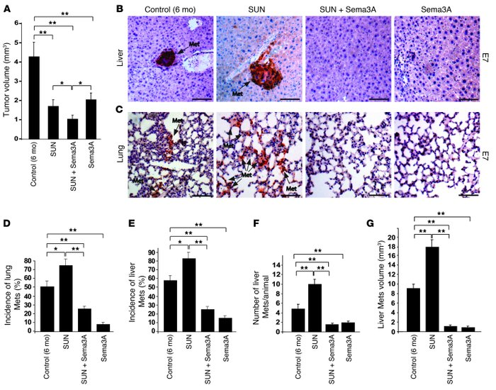 Sema3A halts sunitinib-elicited tumor invasion and metastasis formation ...
