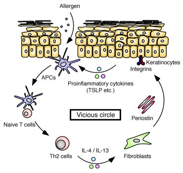 JCI - Periostin promotes chronic allergic inflammation in response