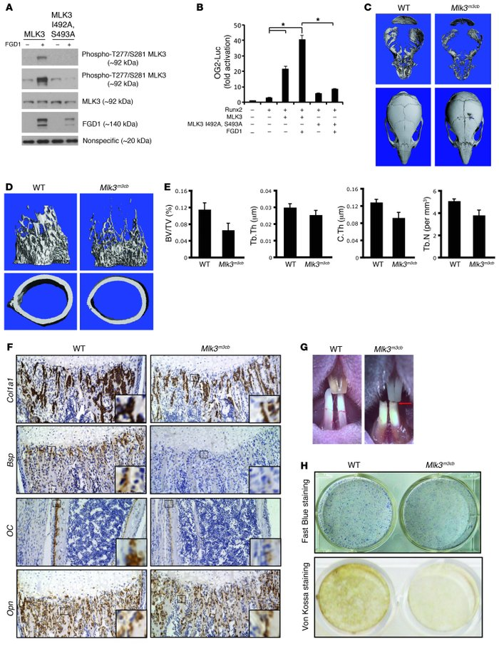 Mlk3m3cb mice demonstrate the physiologic relevance of the FGD1/CDC42/M...