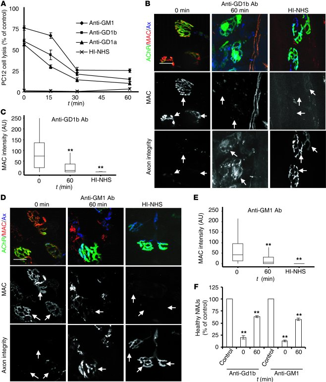 AGAb uptake attenuates complement activation in vitro and ex vivo, and p...