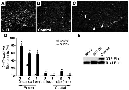 SHEDs regenerate 5-HT fibers and inhibit SCI-induced activation of Rho G...