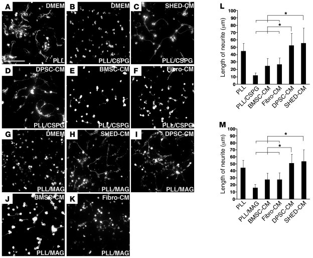 SHED-CM and DPSC-CM promote the neurite extension of CGNs on CSPG or MAG...