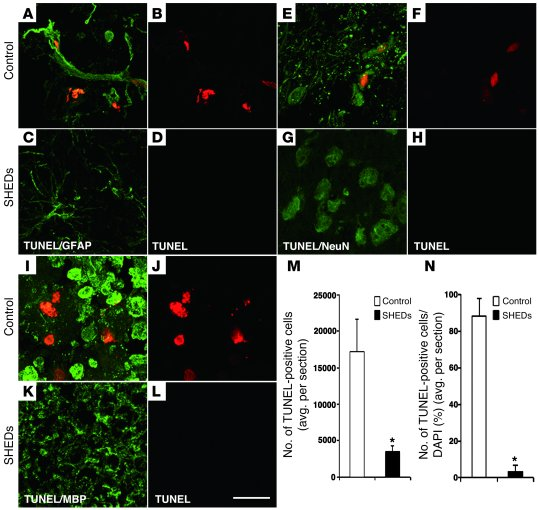 SHEDs suppress the apoptosis of neural cell lineages and secondary injur...