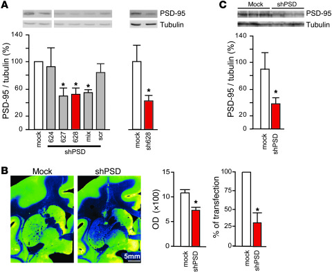 shPSD LV reduces PSD-95 levels in the MPTP-treated macaque. (A) 3 human ...