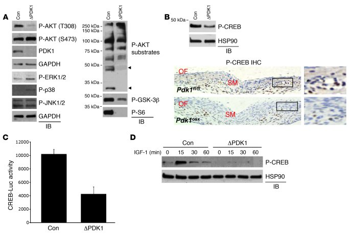 PDK1 activates CREB via AKT in osteoblasts. (A) Pdk1fl/fl CalvObs were i...