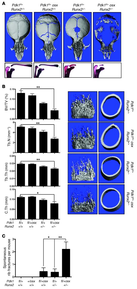 PDK1 regulates RUNX2 in vivo. (A) μCT analysis of the calvaria (top) and...