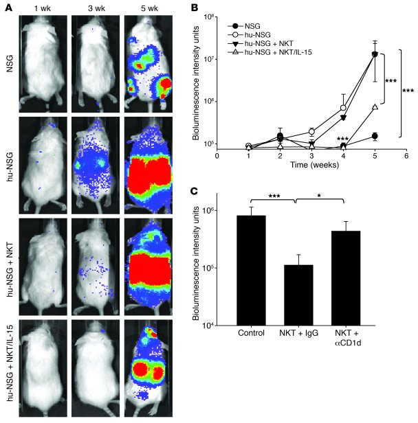 NKT/IL-15 cells have potent antitumor activity in a metastatic NB model ...