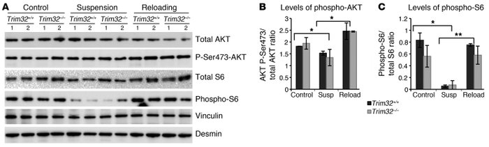 AKT signaling is not impaired in Trim32–/– muscles.     (A) Representati...