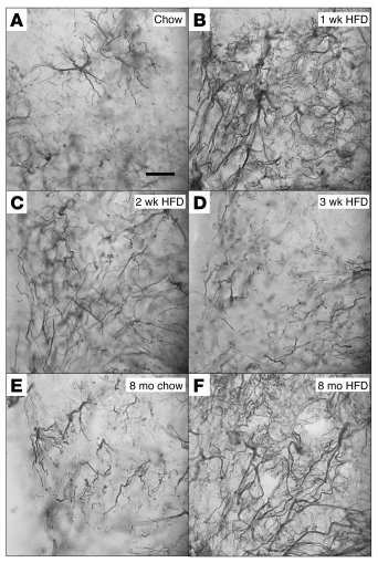 Effect of HFD feeding on ARC astrocyte morphology. High-magnification (o...