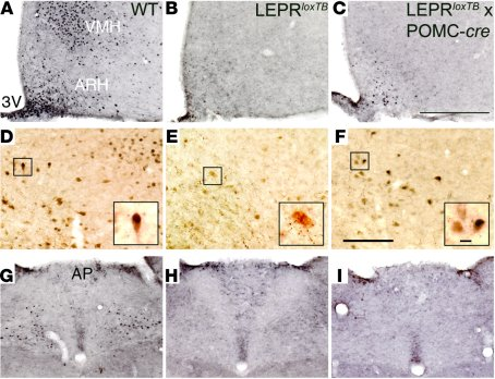 LEPRs are only reactivated in the ARH in LeprloxTB × POMC-cre mice.     ...