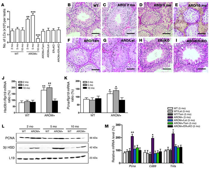 LC hyperplasia and testicular macrophage activation are estrogen/ERα-dep...