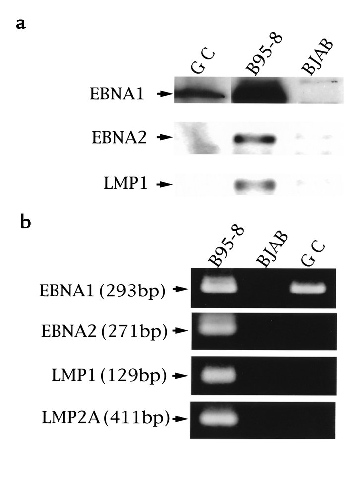 (a) Immunoblot analysis of EBV latent protein expression. Protein blots ...