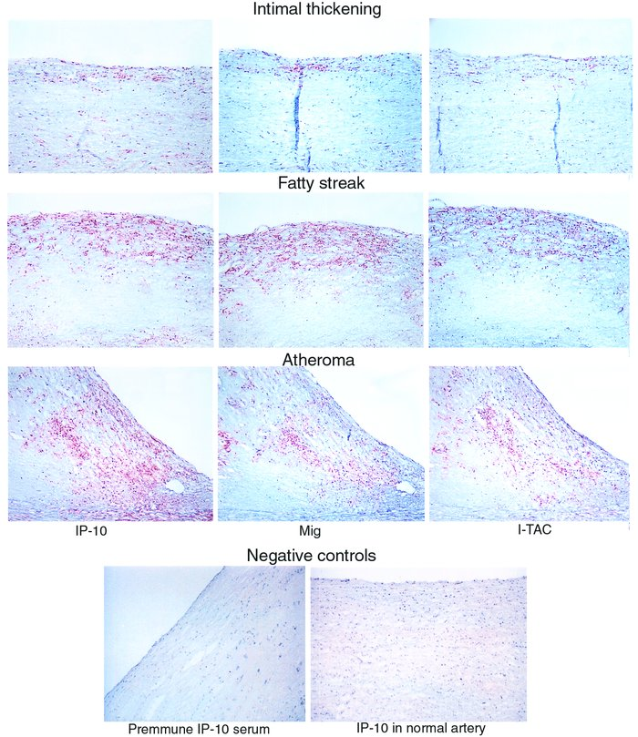 Expression of IP-10, Mig, and I-TAC in human atherosclerotic lesions in ...