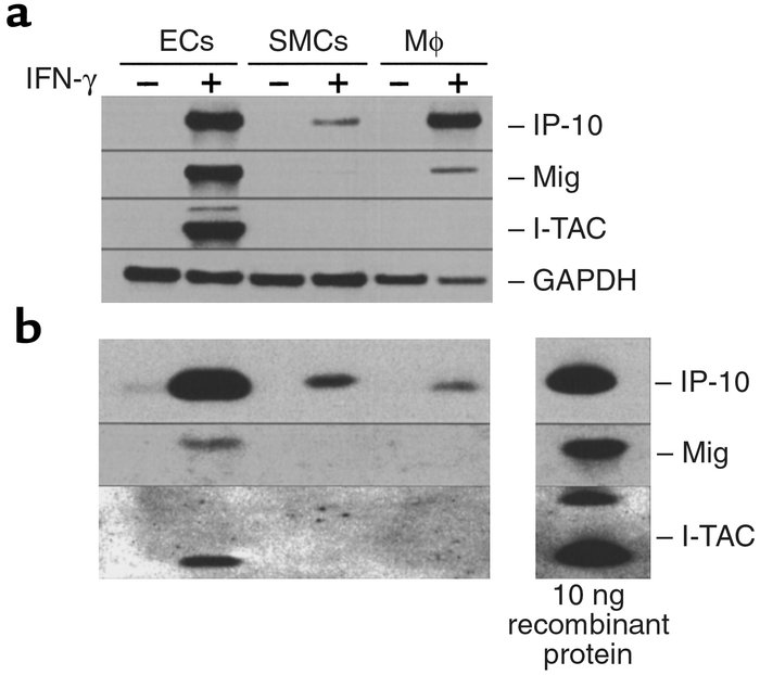 Expression of IP-10, Mig, and I-TAC by human ECs, SMCs, and monocyte-der...