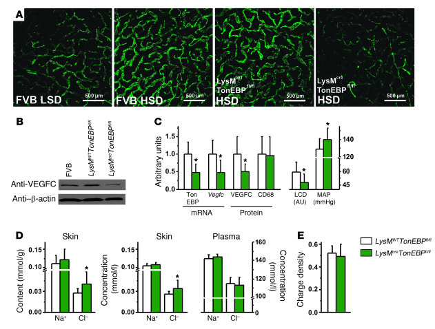 TONEBP in MPS cells is essential for VEGFC-driven lymphatic capillary hy...
