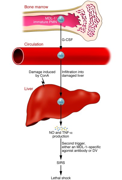 Proposed pathways that are MDL-1 dependent and lead to SIRS, liver injur...