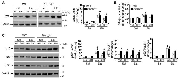 SRT1720 protection against lung senescence is diminished in Foxo3–/– mic...