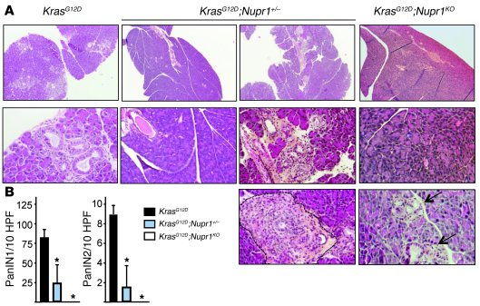 Nupr1 expression is necessary for PanIN development.   (A) Pancreata fr...